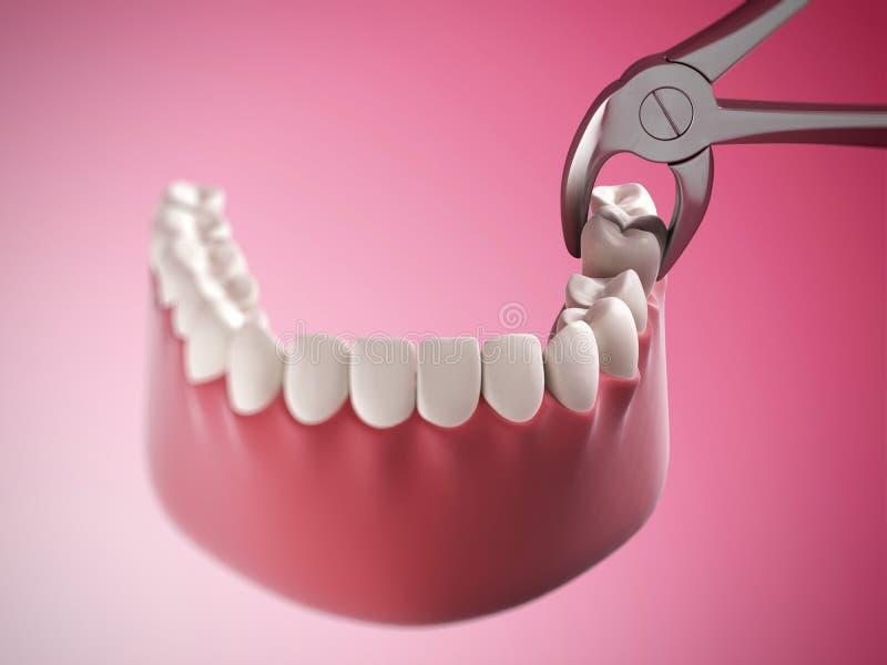 Zahnziehen vektor abbildung