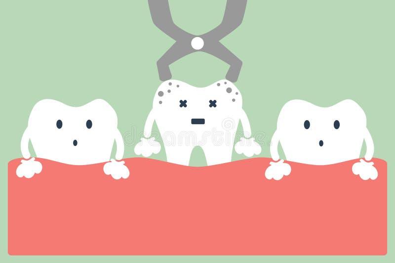 Zahnziehen lizenzfreie abbildung