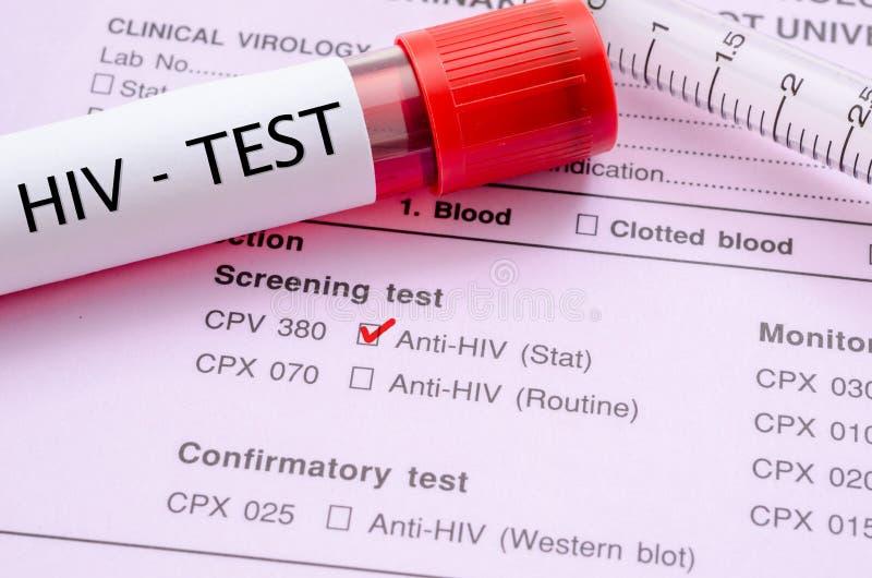 zakażenie wirusem HIV przesiewania testa forma obrazy royalty free
