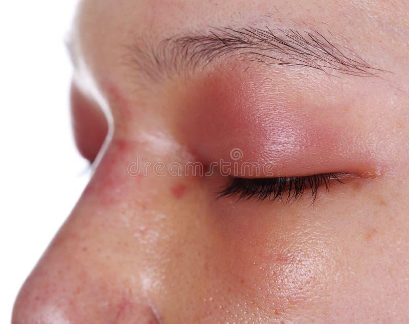 Zakończenie górnego oka pokrywkowy pęcznienie po nos pracy obraz stock