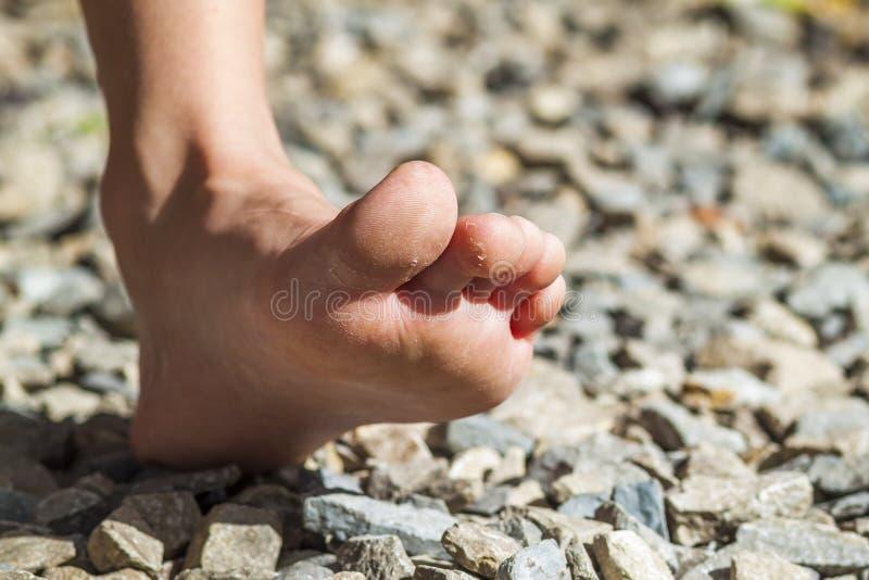 Zakończenie nagiej stopy odprowadzenie aktywność na kamieniach, outdoors obrazy royalty free