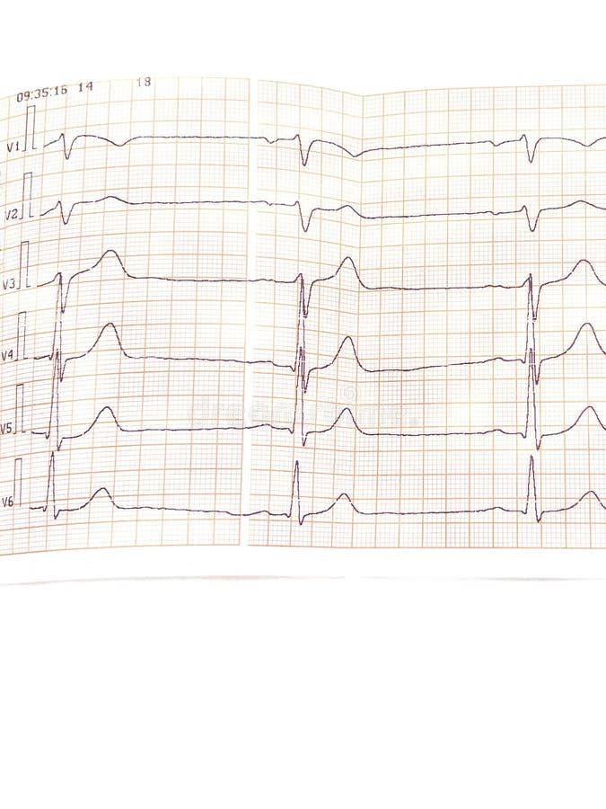 Zakończenie up elektrokardiogram w papier formie fotografia stock