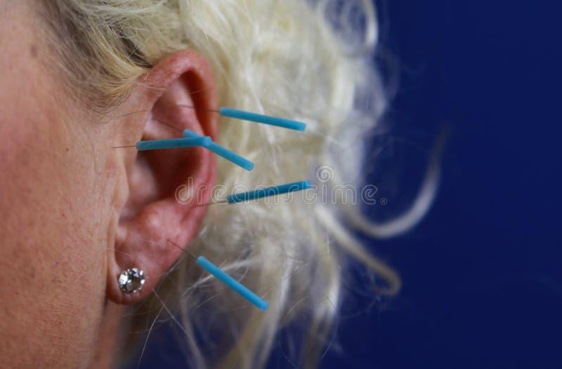 Zamyka w górę ludzkiego żeńskiego ucho z błękitnymi igłami: Uszata akupunktura jako forma alternatywna chińska medycyna obraz royalty free