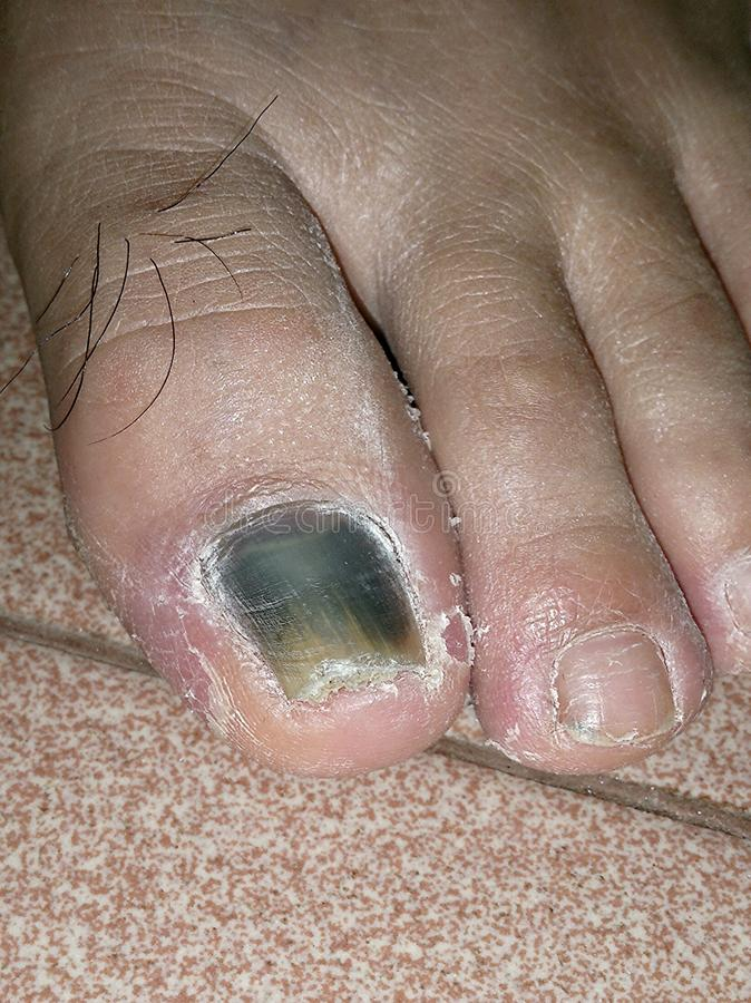 Zamyka w górę widoku toenail podrzucający i obracający czerń obraz royalty free
