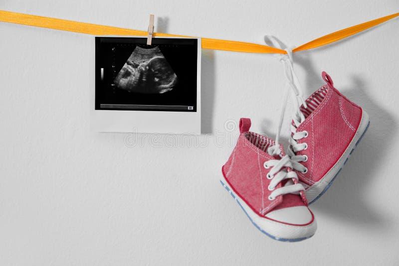 Zapatillas de deporte de la foto y del bebé del ultrasonido que cuelgan en cinta foto de archivo