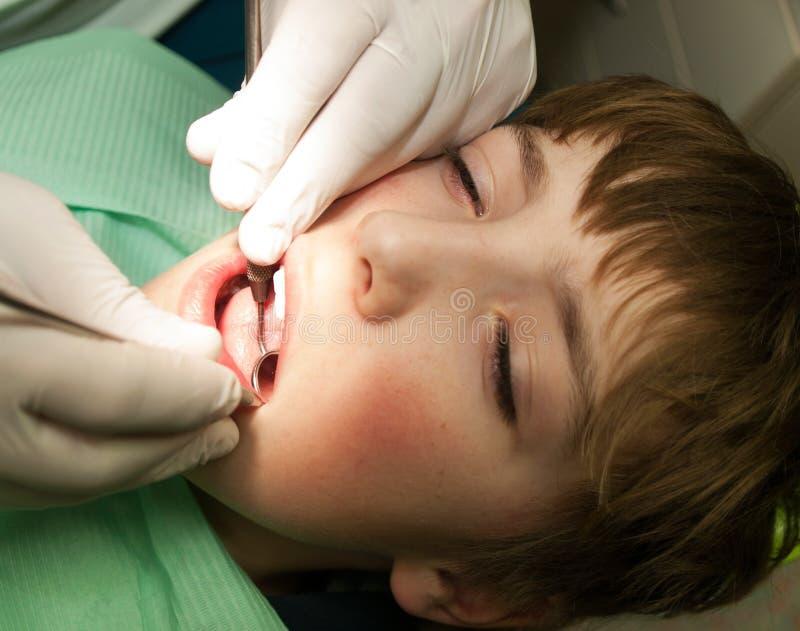 Zapobieganie zębu kontrola fotografia stock