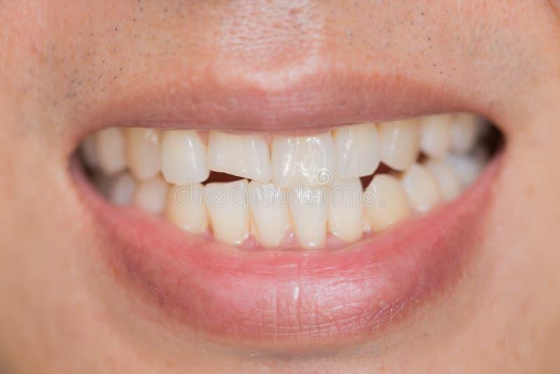 Zbliżenia usta stomatologiczny problem Zębów urazy lub zęby Łama w samiec obraz royalty free