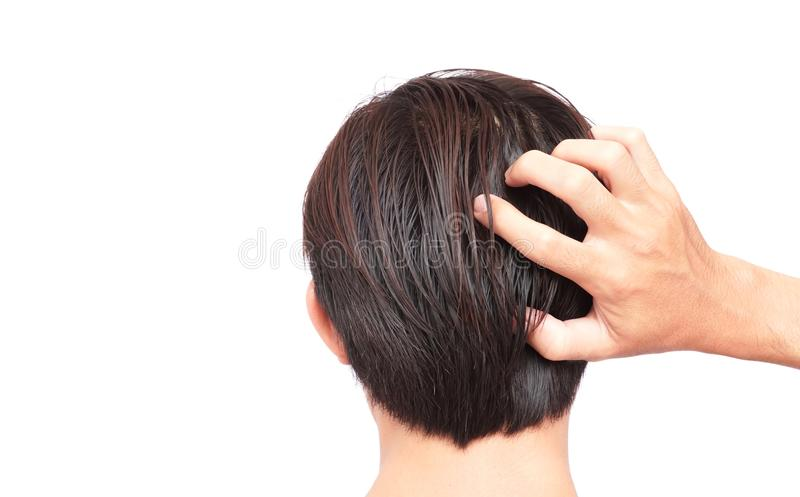 Zbliżenie mężczyzna ręki itchy skalp, Włosianej opieki pojęcie fotografia stock