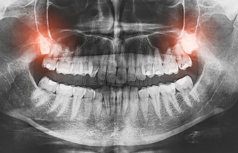 Zbliżenie promieniowanie rentgenowskie wizerunku mądrości zębów bólu narastający pojęcie obraz stock