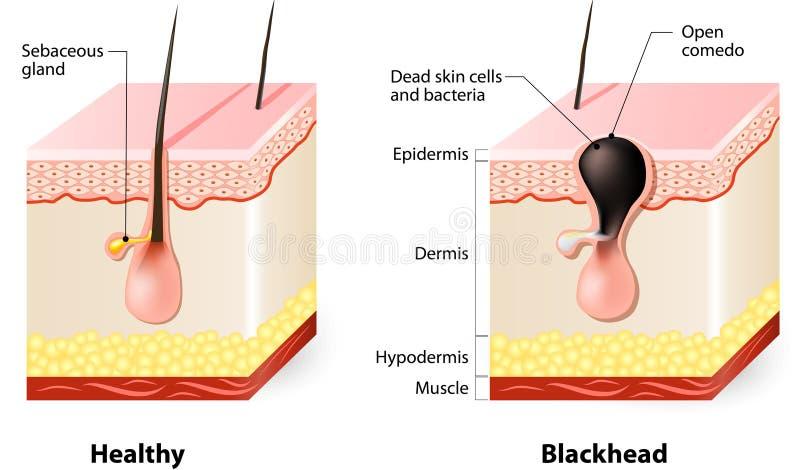 Zdrowa skóra i zaskórniki royalty ilustracja