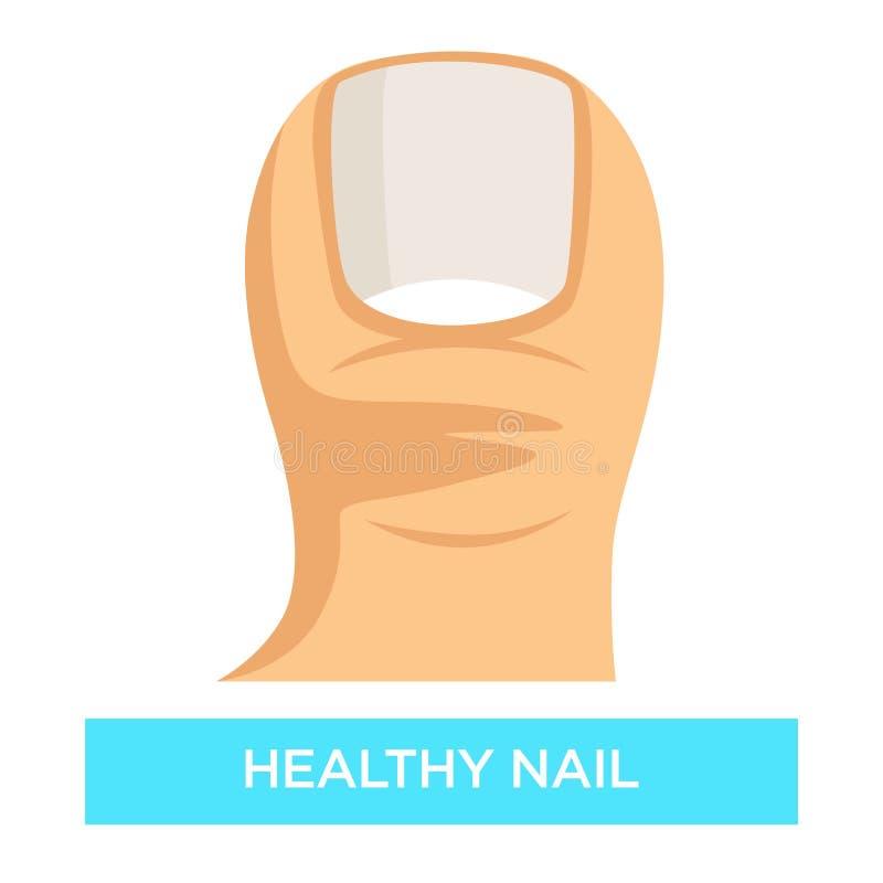 Zdrowego gwoździa toenail infekcji zapobiegania grzybowa medycyna i opieka zdrowotna ilustracja wektor