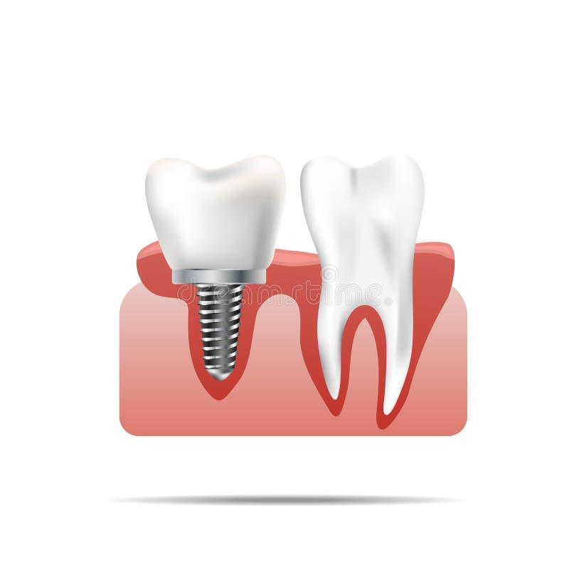 Zdrowi zęby i stomatologiczny wszczep Realistyczna ilustracja ząb medyczna dentystyka royalty ilustracja
