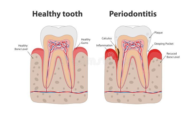 Zdrowy ząb i niezdrowy ząb z periodontitis z gumowego rozognienia infographic elementami odizolowywającymi na bielu ilustracja wektor