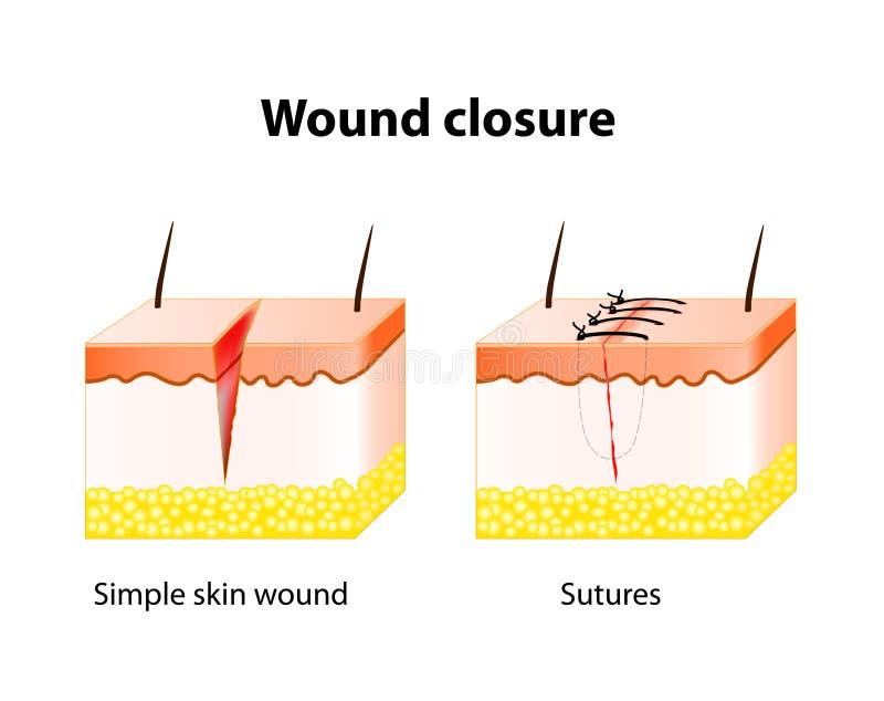 Zdyszany leczniczy proces z pomocą chirurgicznie zszywa royalty ilustracja