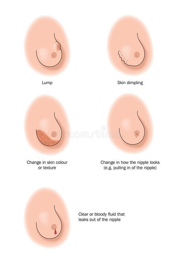 Zeichen des Brustkrebses lizenzfreie abbildung