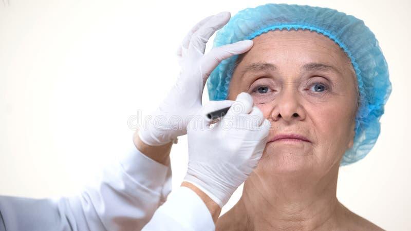 Zeichnung des plastischen Chirurgen markiert auf Gesicht der alten Frau vor Antialterntherapie stockfoto