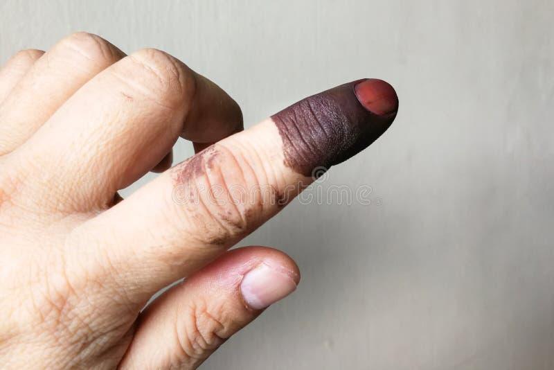 Zeigefinger mit Fleck der dokumentenfesten Tinte nach der Abstimmung in der Wahl lizenzfreies stockbild