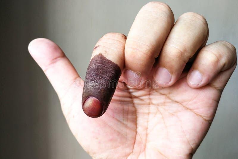 Zeigefinger mit Fleck der dokumentenfesten Tinte nach der Abstimmung in der Wahl lizenzfreie stockfotografie