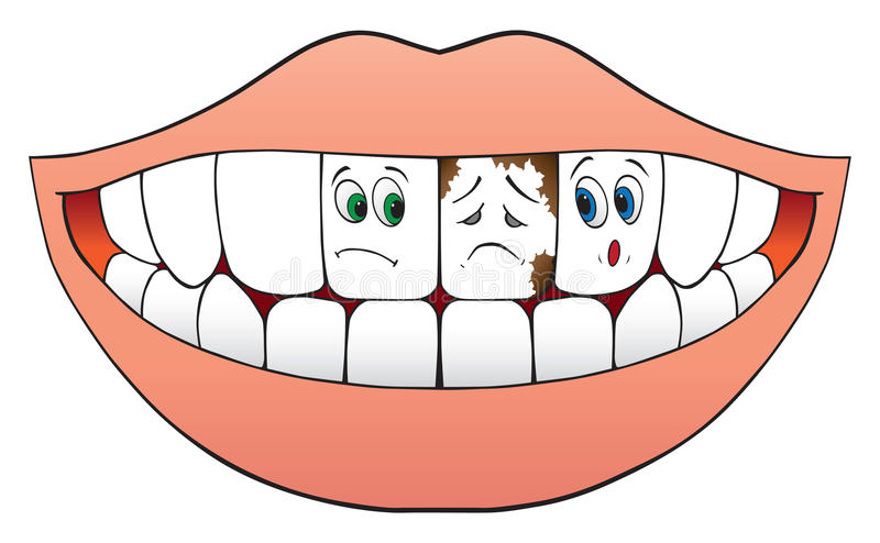 Zenuwachtige Tanden vector illustratie