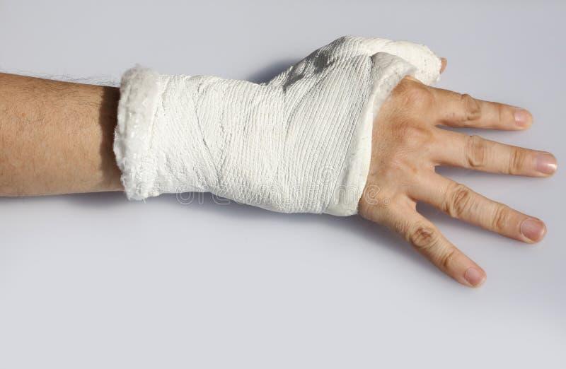 Zerbrochene Hand auf weißem Hintergrund lizenzfreies stockbild