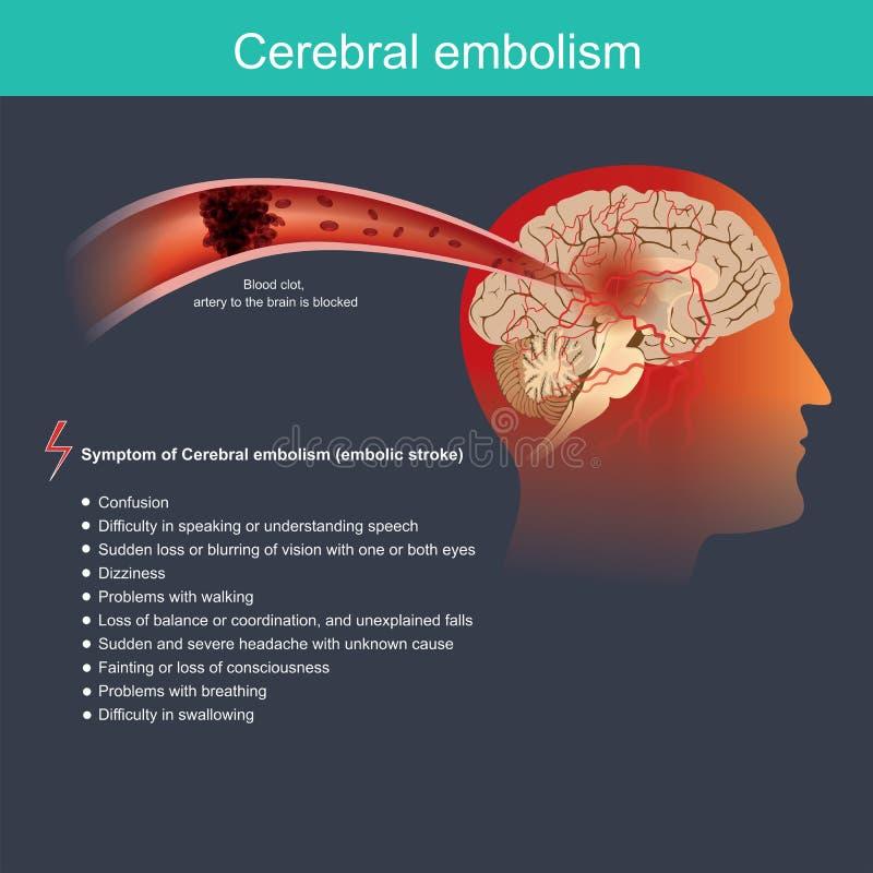 Zerebraler Embolismus Infographic Abbildung Anatomischer Mensch und Gesundheitswesen vektor abbildung