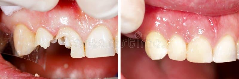 Zerstörtes Zahnfüllen lizenzfreie stockfotos