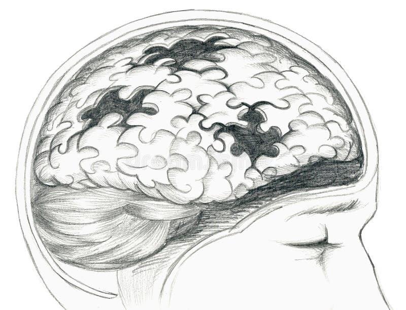 Ziek menselijk hersenengrijs royalty-vrije illustratie