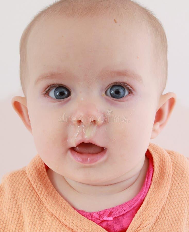 Zieke baby met een lopende neus stock foto's