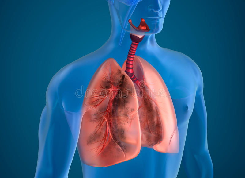 Zieke longen x-ray mening stock illustratie