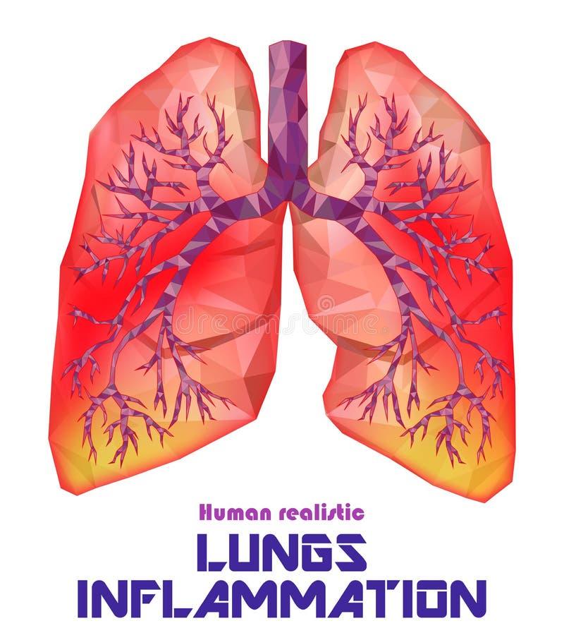 Zieke menselijke realistische longen en trachee in lage poly Pleuritis, royalty-vrije illustratie