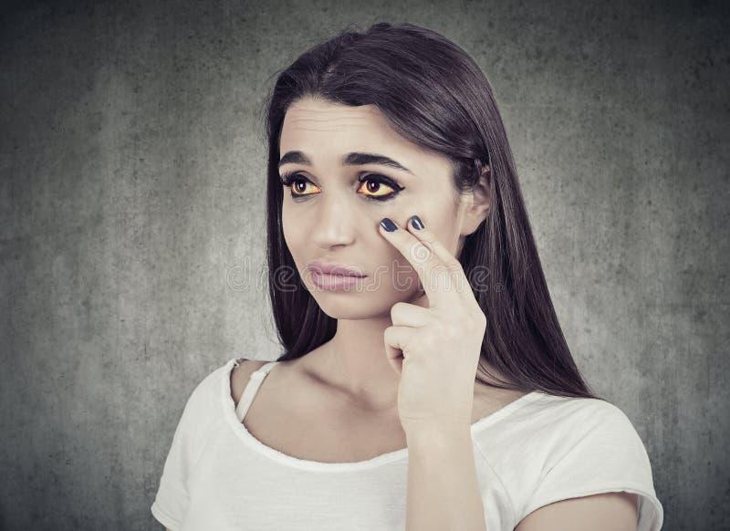 Zieke vrouw die in een spiegel kijkt, heeft gele ogen als teken van mogelijke leverinfectie of andere ziekte stock afbeeldingen