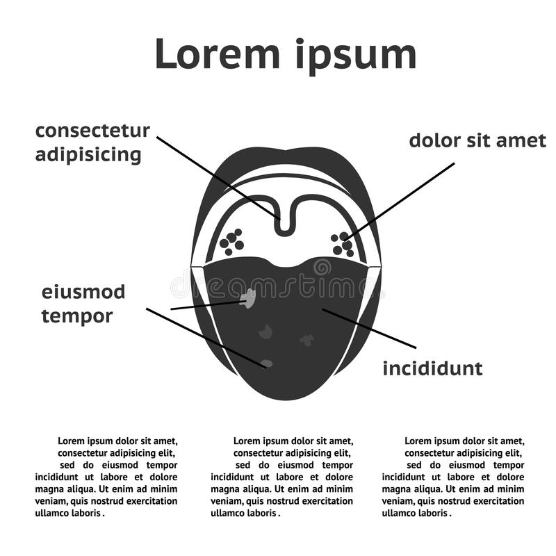 Ziekten van de keel en de mondholte royalty-vrije illustratie