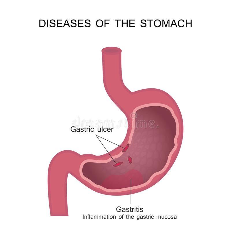 Ziekten van de maag Maagzweer en Gastritis stock illustratie