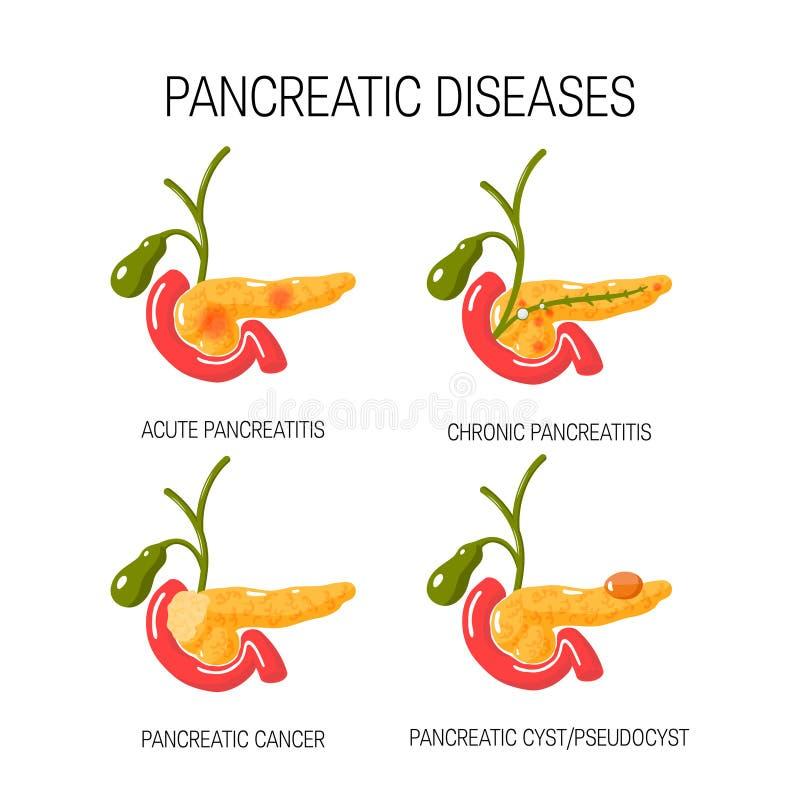Ziekten van het alvleesklierconcept Vector illustratie vector illustratie