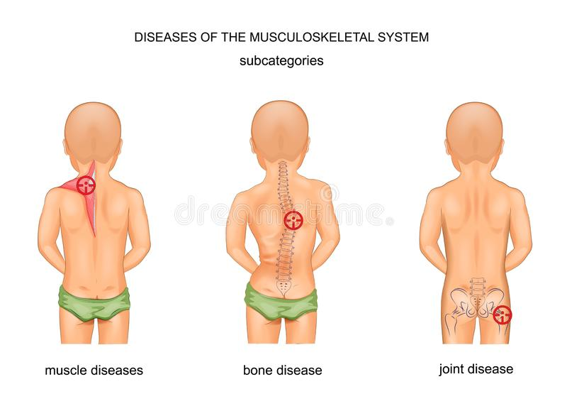 Ziekten van het musculoskeletal systeem vector illustratie