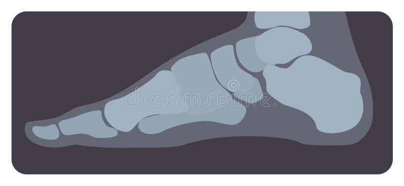 Zijröntgenfoto van menselijk voet of lidmaat Röntgenfoto of radiografisch beeld van middenvoetbeenderen en tenen, zijaanzicht royalty-vrije illustratie