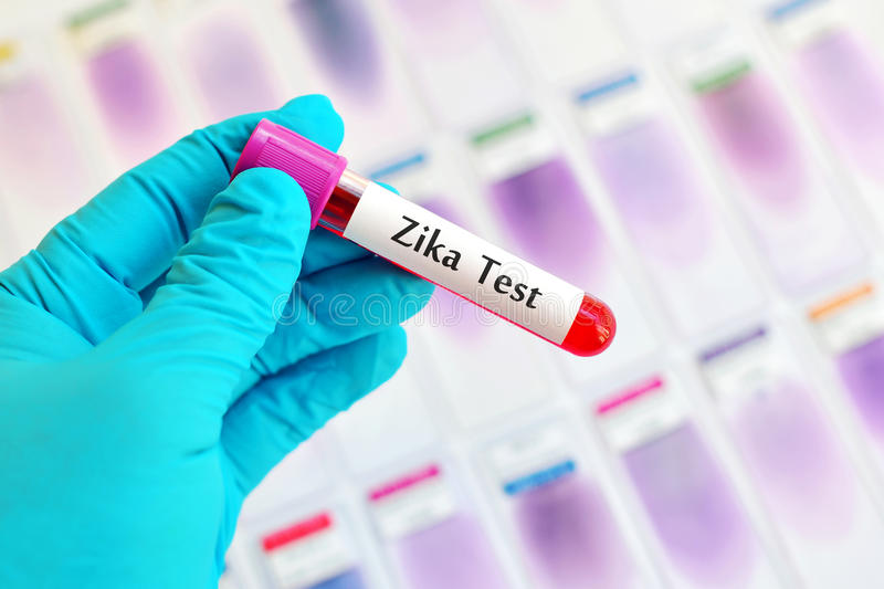 Zika virus. Blood sample for Zika virus test stock photography