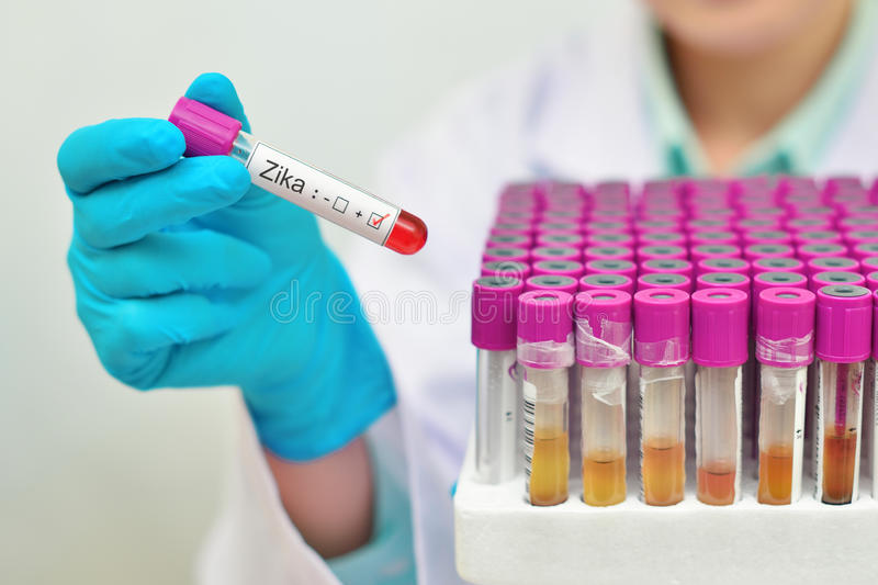 Zika virus positive. Blood sample positive with Zika virus royalty free stock image