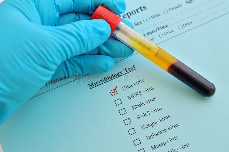 Zika virus test. Blood sample for Zika virus test stock photography