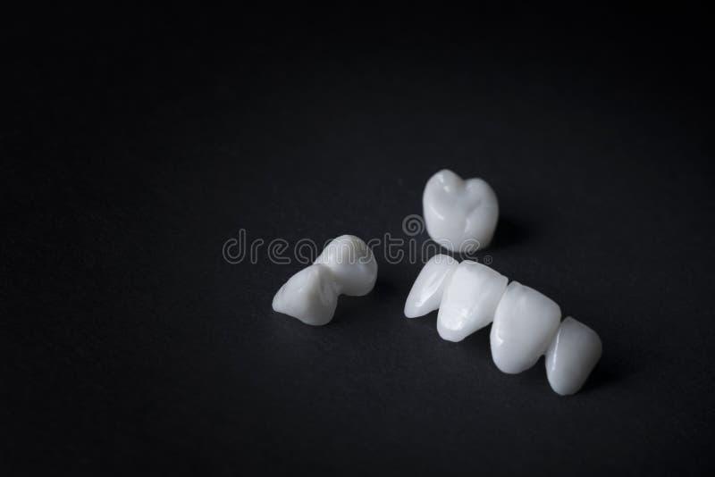 Zircon dentures on a black background - Ceramic veneers - lumineers royalty free stock images