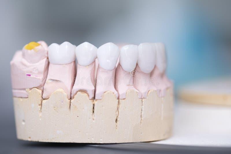 Zirconia dentures on a gypsum jaw - Ceramic dentures -. Zirconia dentures is used for cosmetic purposes in dental clinics royalty free stock image
