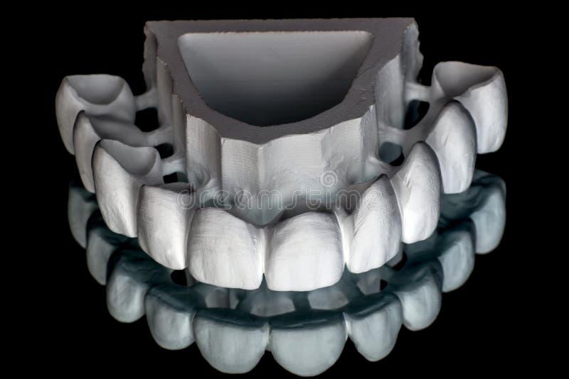 Zirconium en céramique dents Technicien dentaire image stock