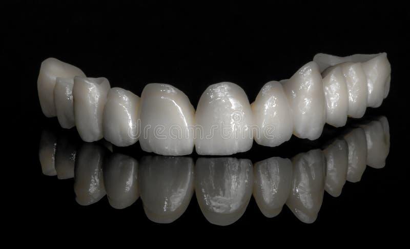Zirconium en céramique dents Technicien dentaire photographie stock libre de droits