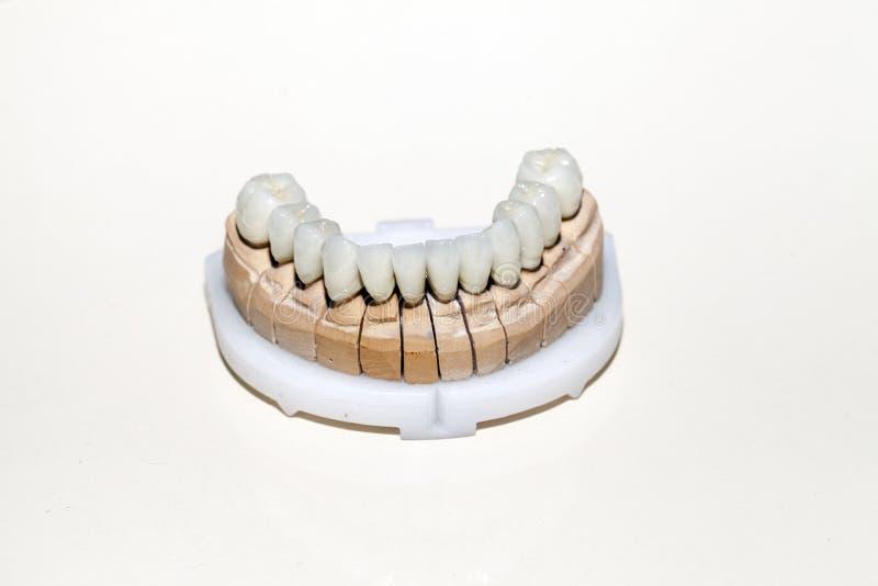 Zirkonium-Porzellan-Zahnplatte stockfotos