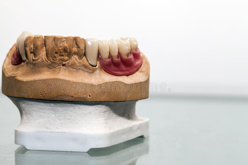 Zirkonium-Porzellan-Zahnplatte stockbilder