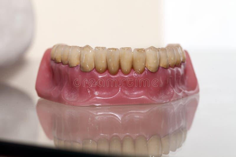 Zirkonium-Porzellan-Zahnplatte stockfoto