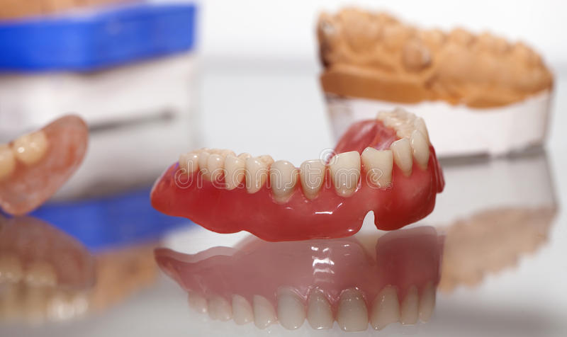 Zirkonium-Porzellan-Zahnplatte im Zahnarzt Store stockfotografie