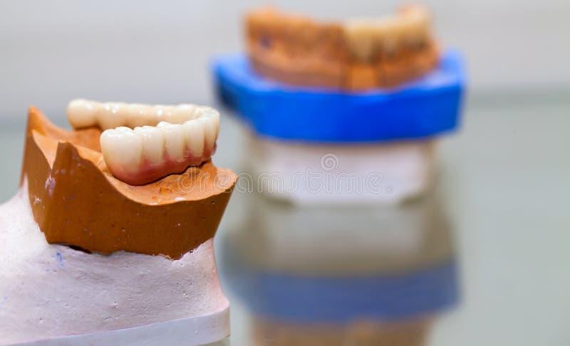 Zirkonium-Porzellan-Zahnplatte im Zahnarzt Store stockbilder