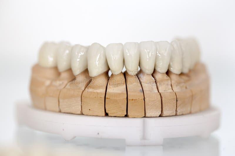 Zirkonium-Porzellan-Zahnplatte im Zahnarzt Store lizenzfreies stockbild