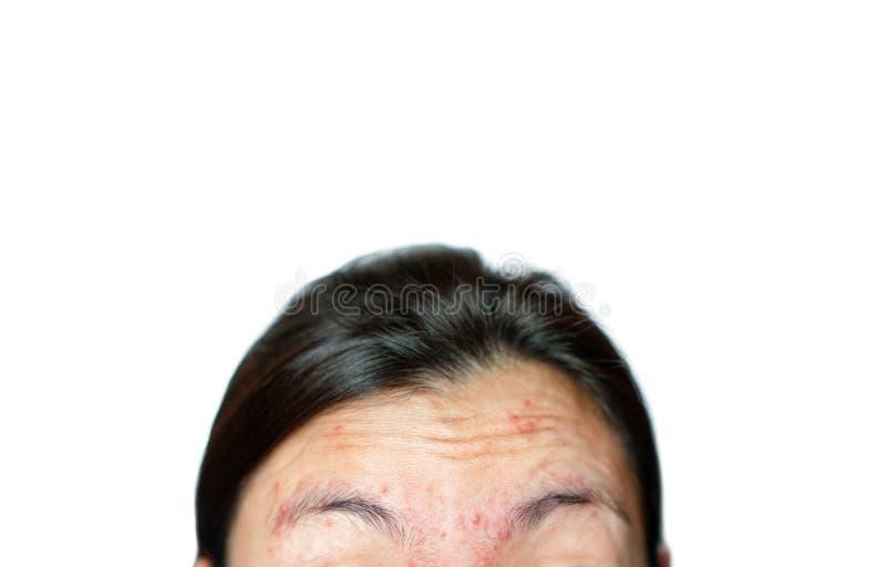 Zmarszczenia i trądzik na twarzy kobiety obrazy royalty free